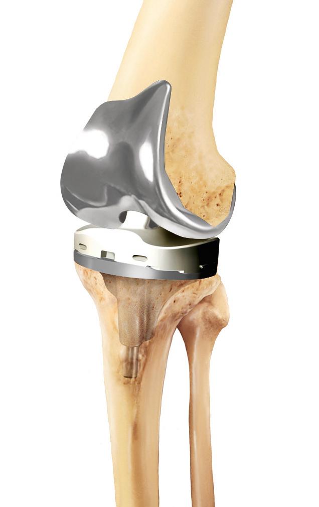 искусственный коленный сустав в уфе